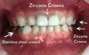 Zirconia-vs-Silver Shelby Pediatric Dentistry